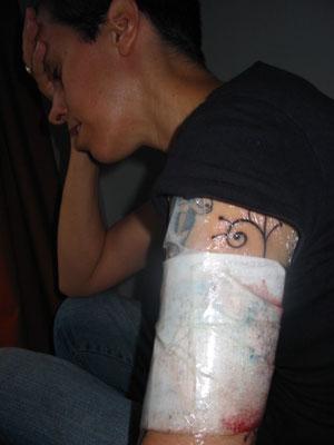 bandaged1